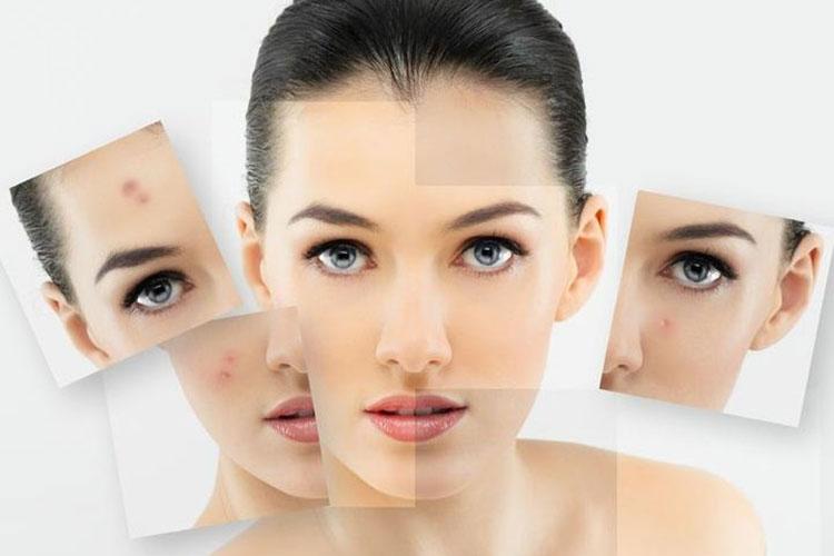 dịch vụ trị sẹo lồi và lõm với công nghệ Mesotherapy tại Hà Nội